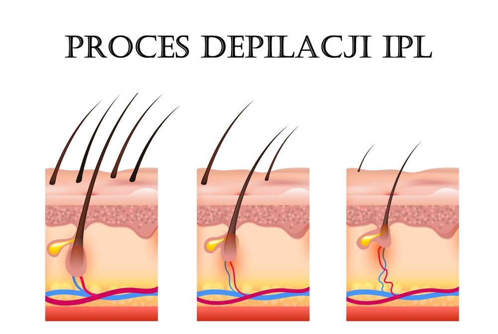 Kilkutygodniowy postep w procesie depilacji