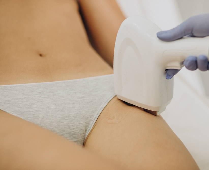 Depilacja Laserowa IPL okolic intymnych