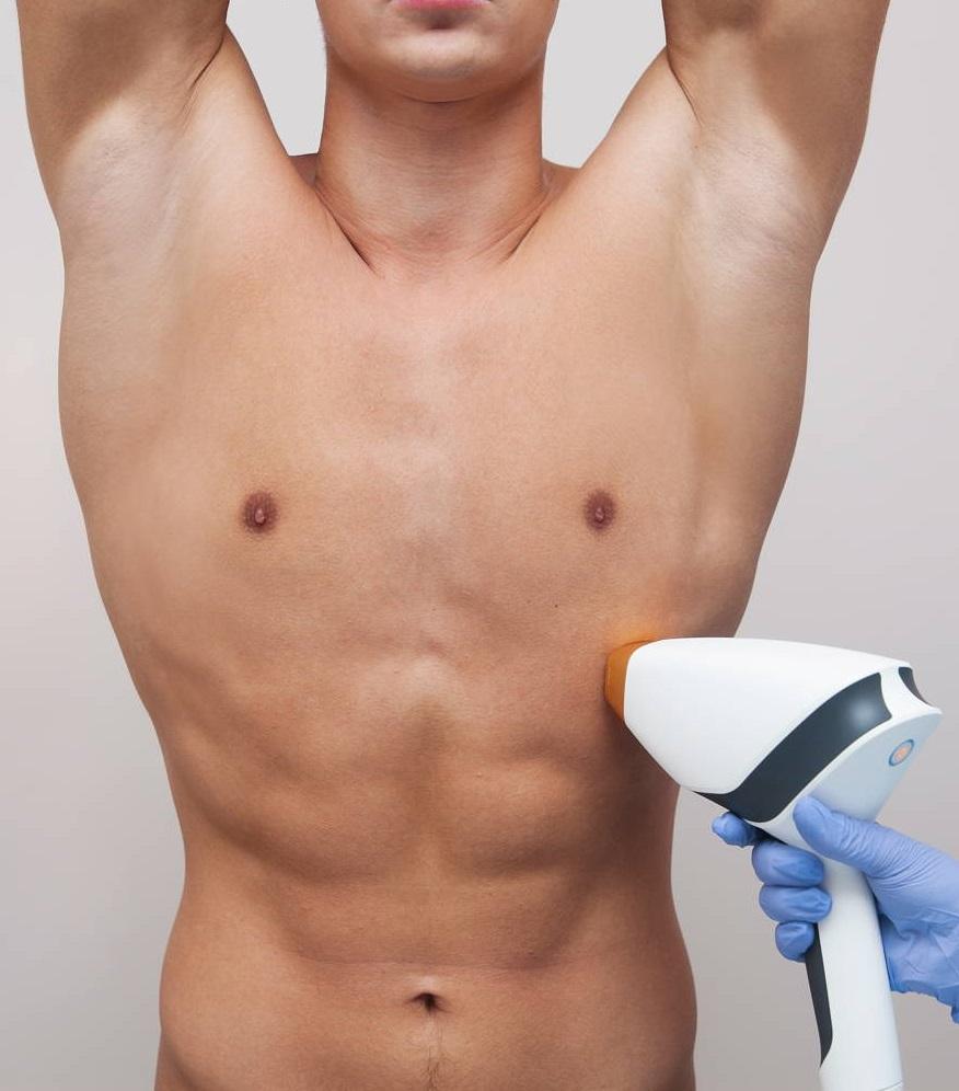 Męska depilacja laserem
