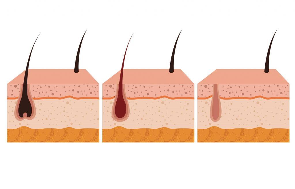 Proces wypadania włosów w wyniku dzialania lasera